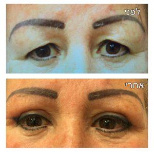 ניתוח עפעפיים לפני ואחרי