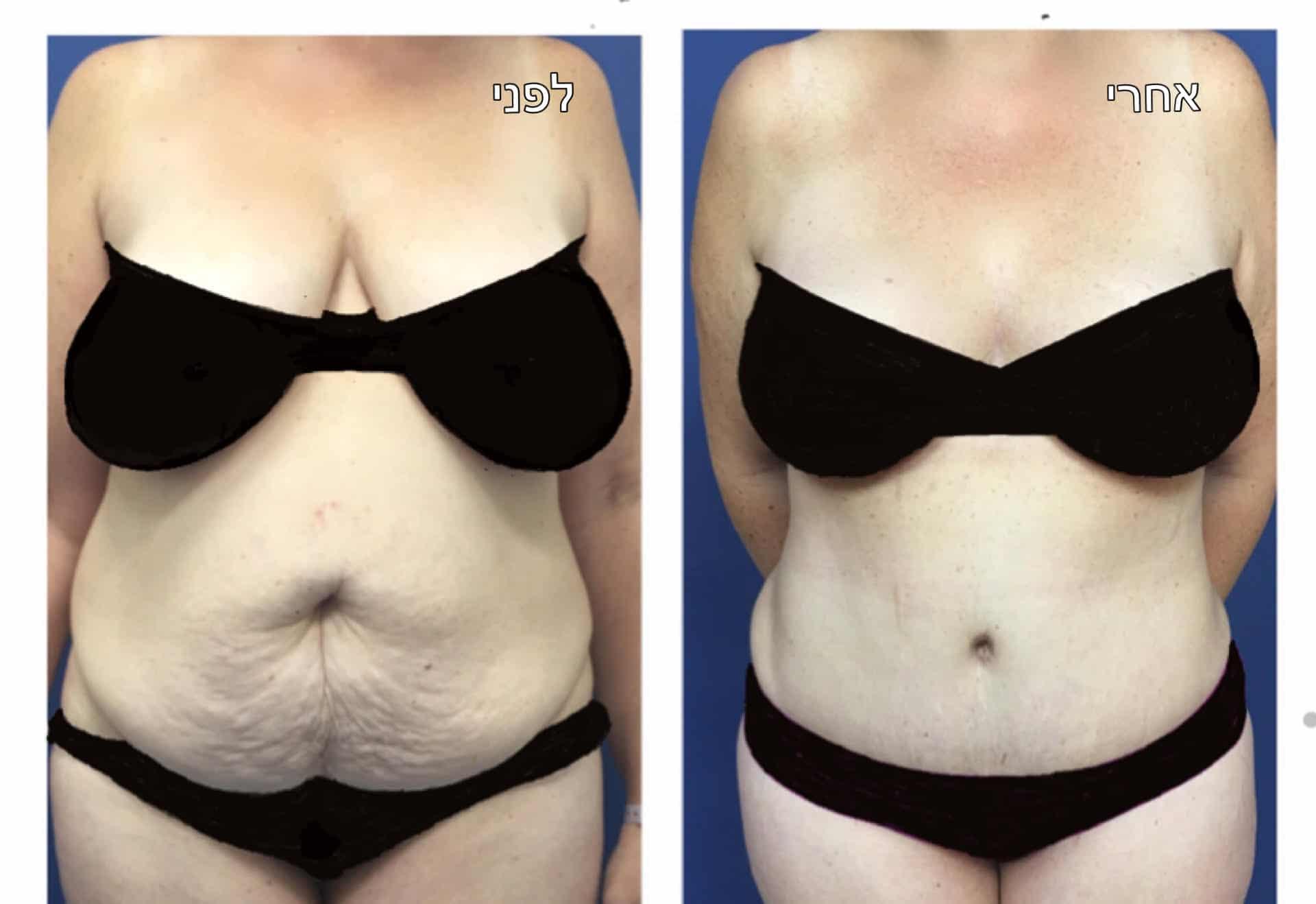 מתיחת בטן לפני ואחרי