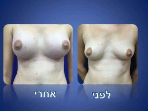 ניתוח הגדלת חזה - לפני ואחרי