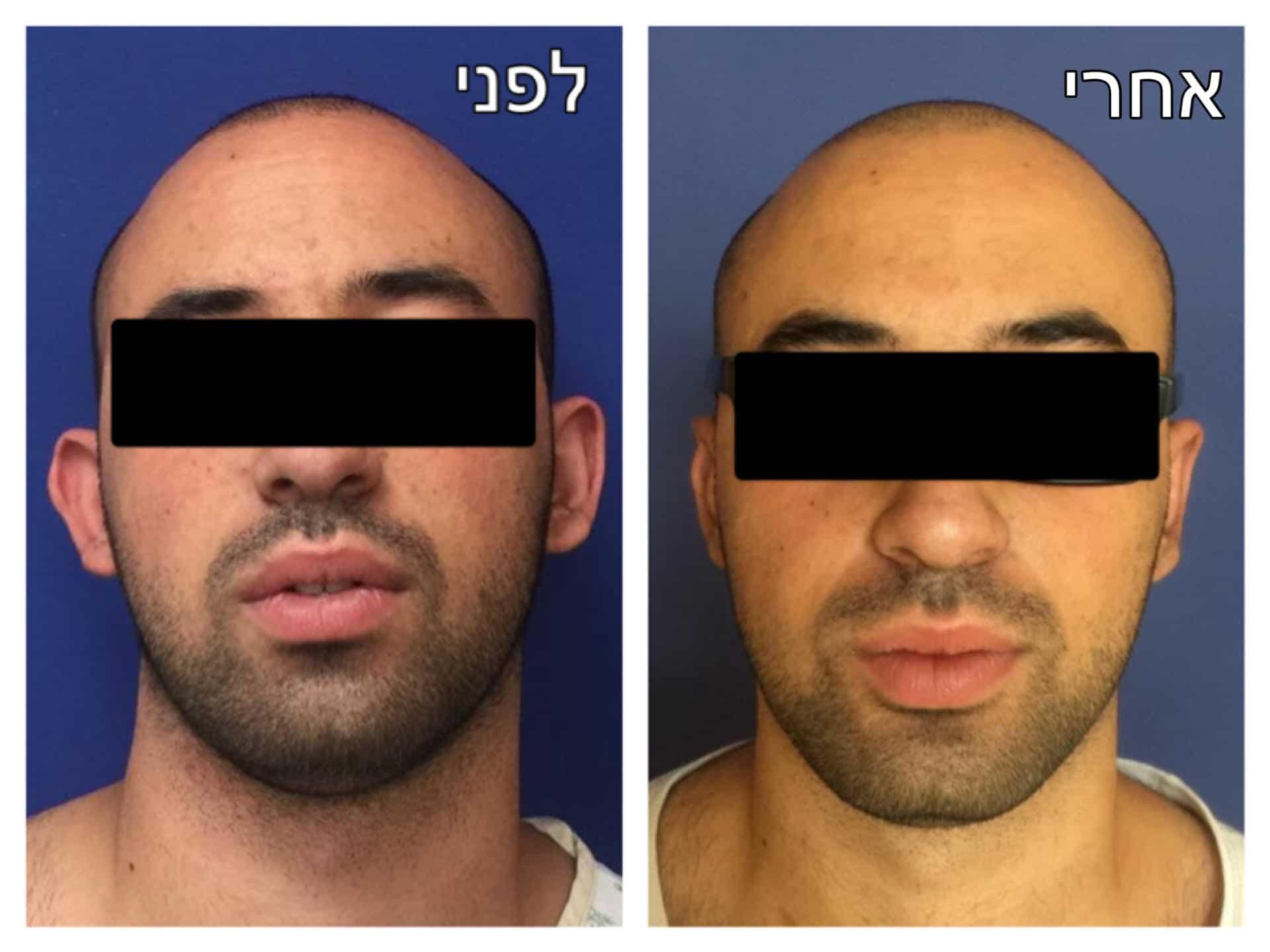 הצמדת אוזניים לפני ואחרי תמונה