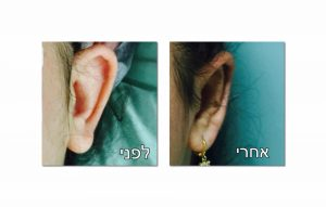 הצמדה של האוזניים לפני ואחרי