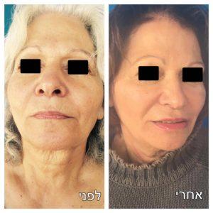 טיפול בקמטים לפני ואחרי