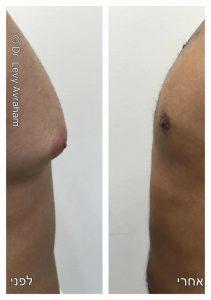 ניתוח הקטנת חזה לגבר גניקומסטיה