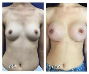 הגדלת חזה תמונה לפני ואחרי