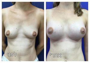 ניתוח הגדלת חזה תמונה לפני ואחרי