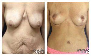 ניתוח הרמת חזה תמונה לפני ואחרי