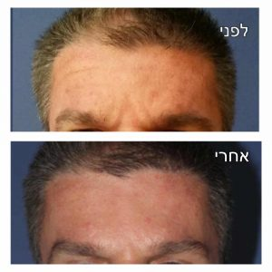הרמת גבות תמונה לפני ואחרי