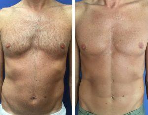 ריבועים בבטן - תמונה לפני ואחרי