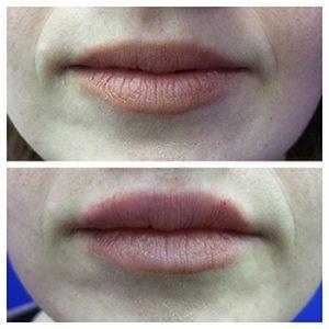 עיבוי שפתיים לפני אחרי