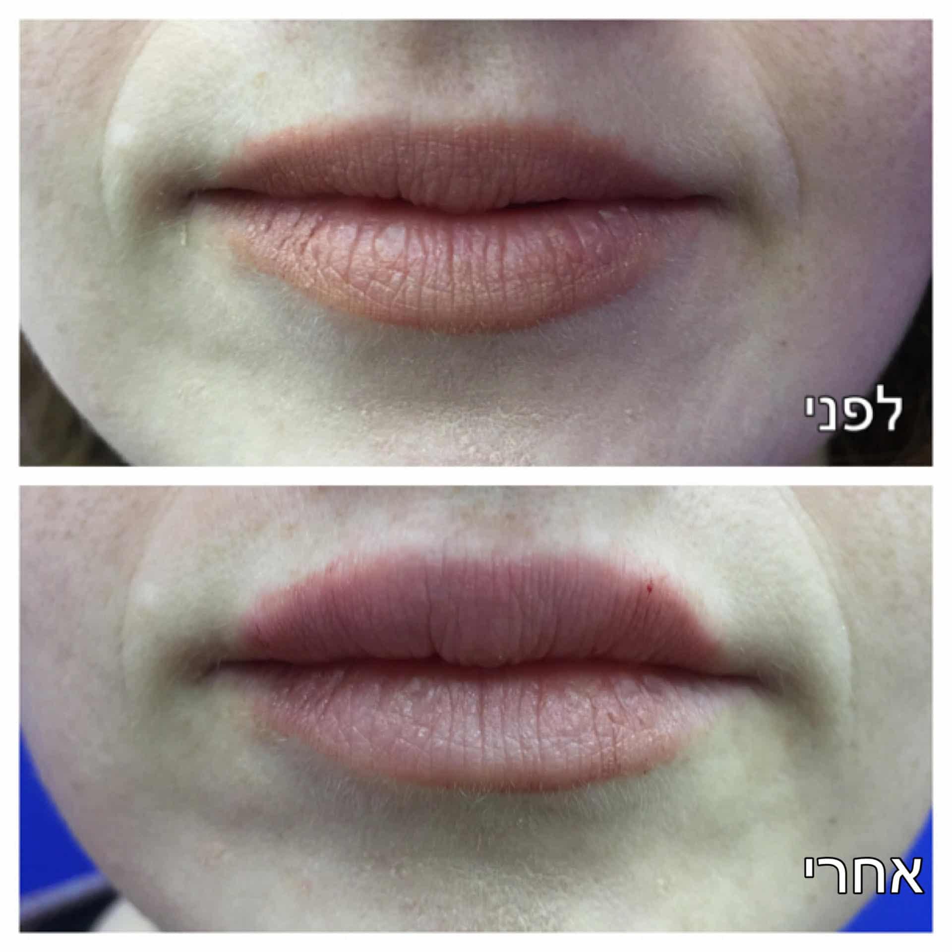 עיבוי שפתיים לפני ואחרי תמונה