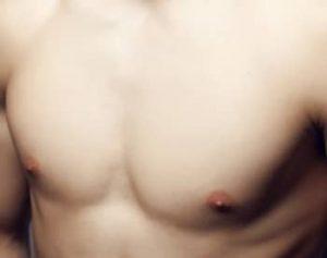 גניקומסטיה וניתוח והקטנת חזה לגבר