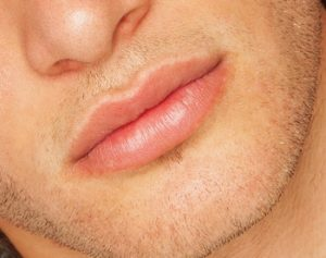 עיבוי שפתיים לגבר