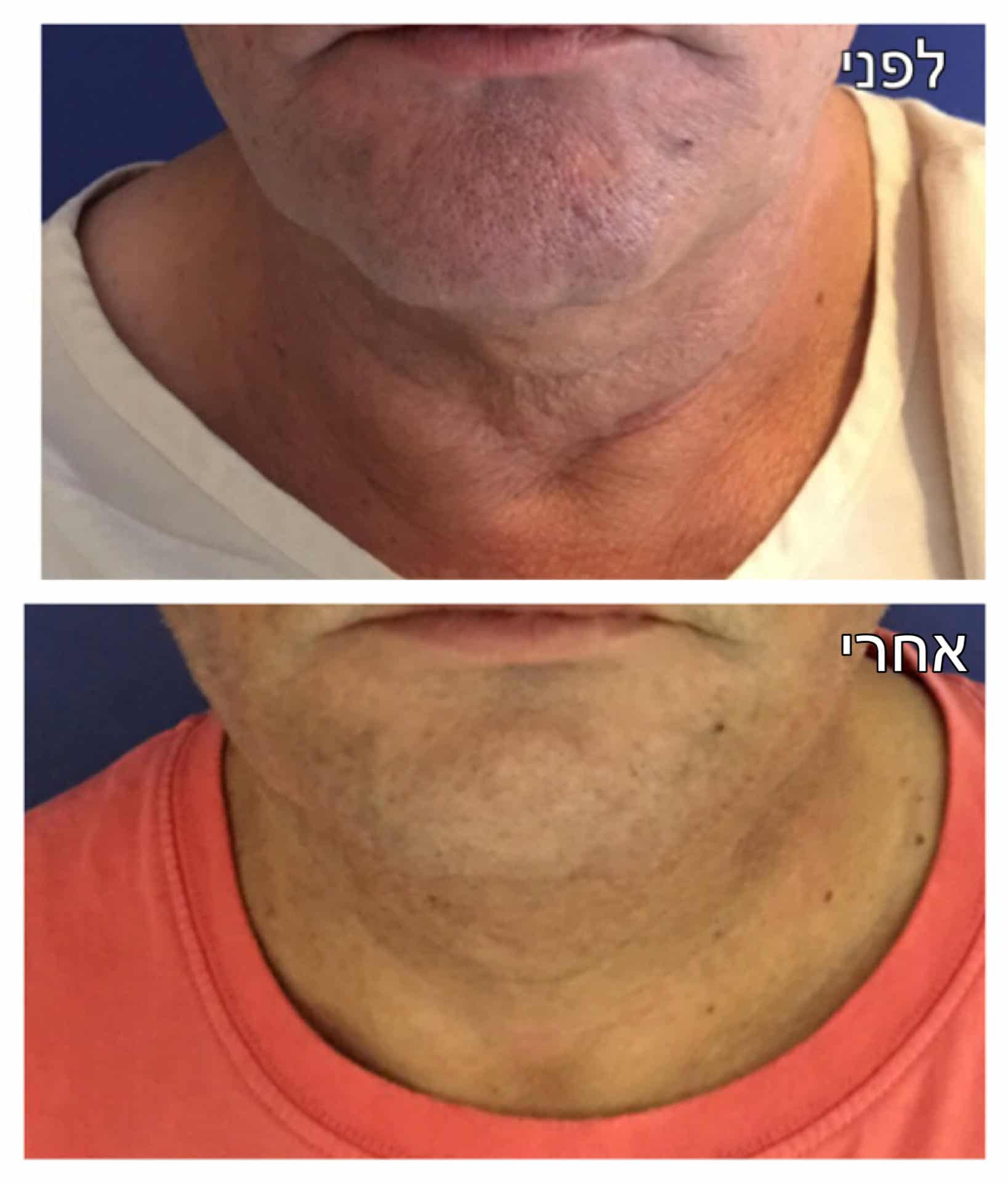 מתיחת צוואר לפני ואחרי