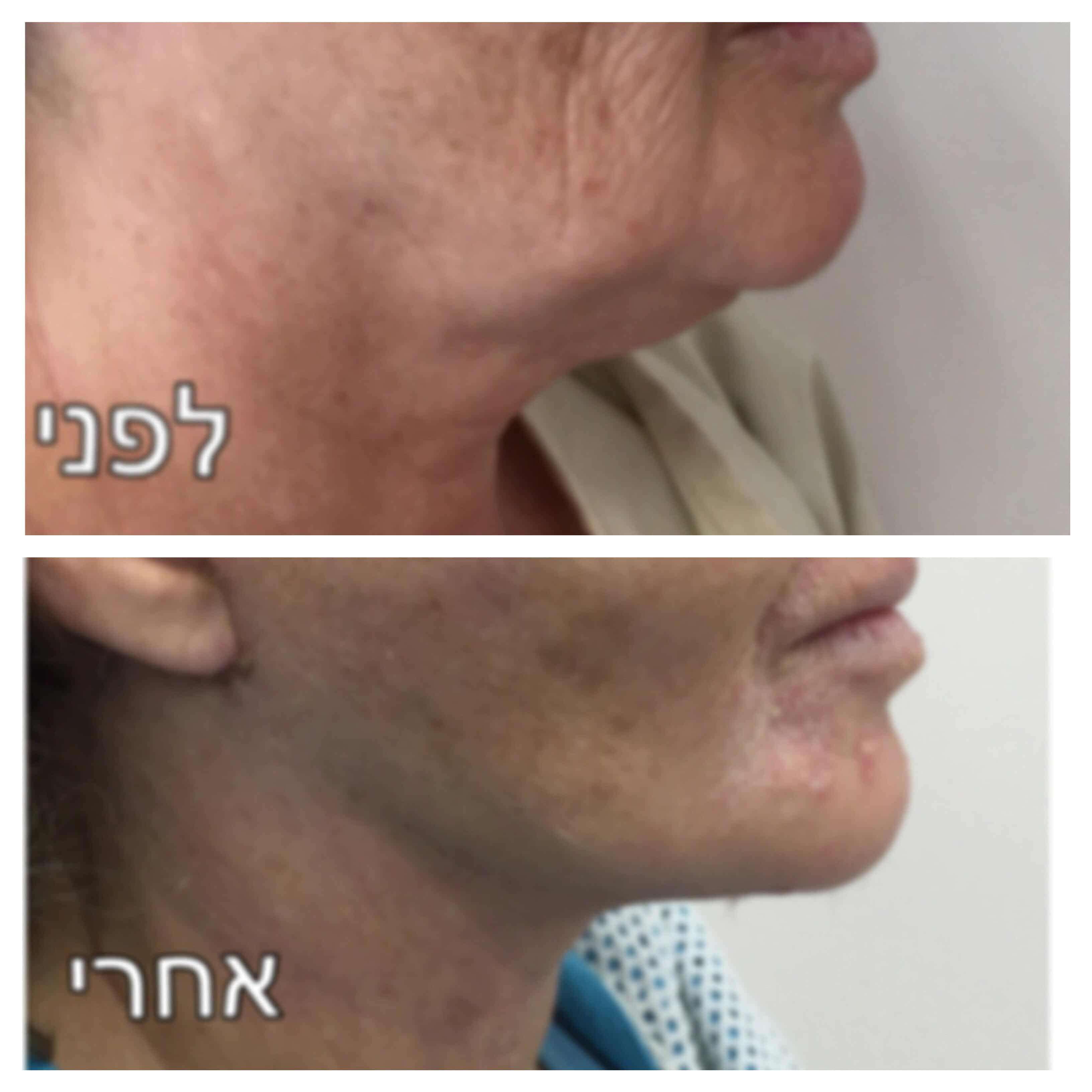 מתיחת צוואר לפני ואחרי תמונה