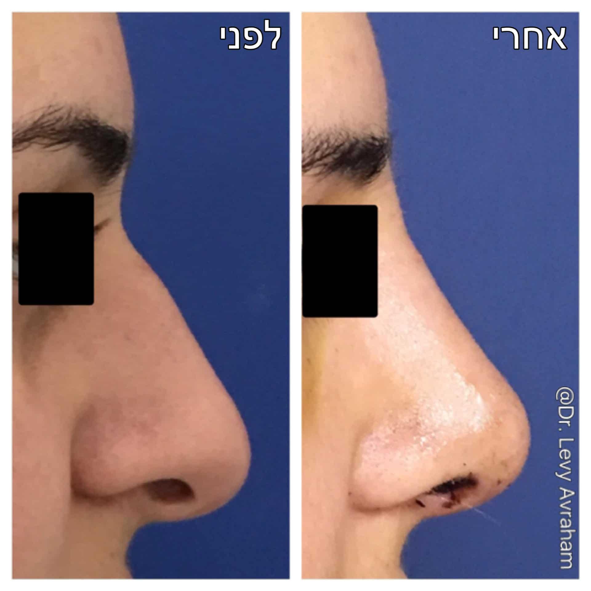 ניתוח אף עם שיוף גבנון, הצרת נחריים, הרמת קצה האף ועידונו