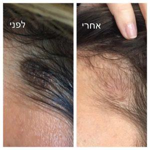 הסרת נגעי עור נשים