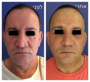 ניתוח אף לפני ואחרי