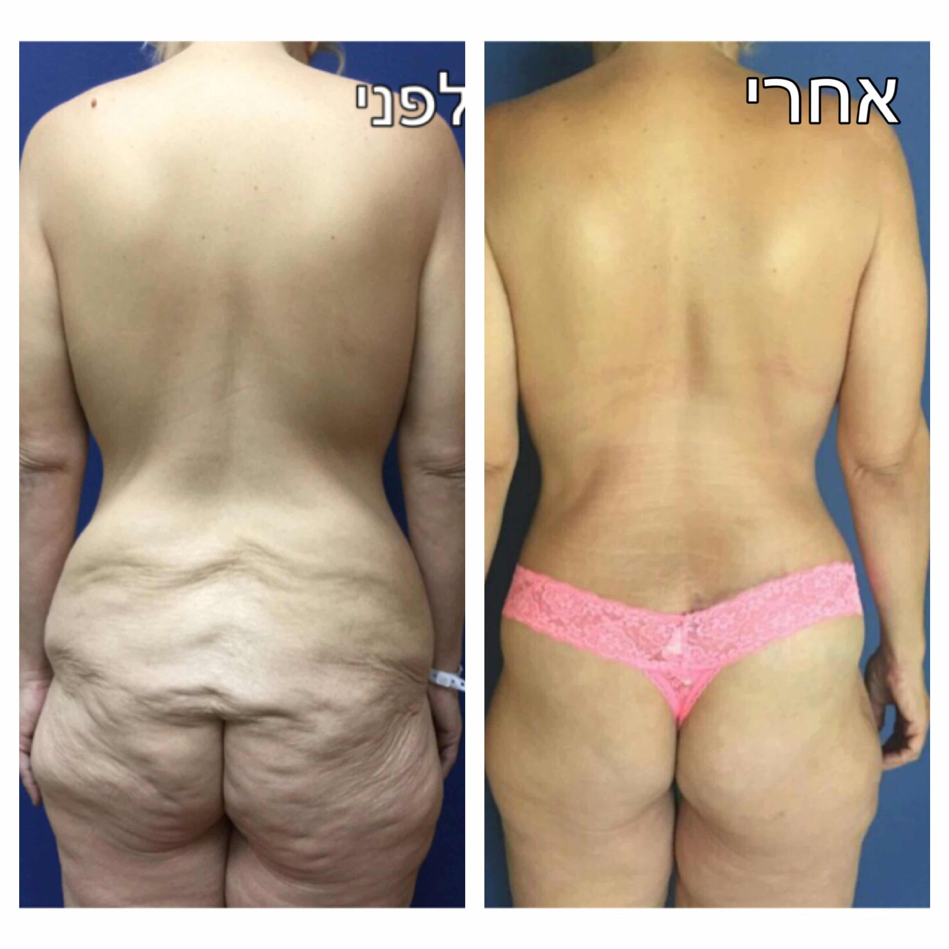 הגדלה והרמת ישבן עם מתלי שומן