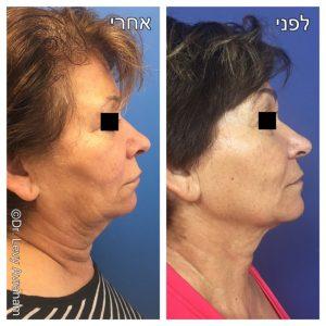הידוק צוואר ללא ניתוח הידוק קו לסת