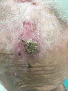 סרטן של עור קשקשי