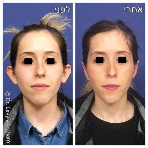 ניתוח הצמדת אוזניים תמונה לפני ואחרי