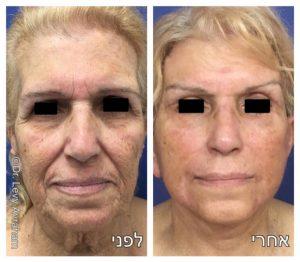ניתוח מתיחת פנים לפני ואחרי תמונה