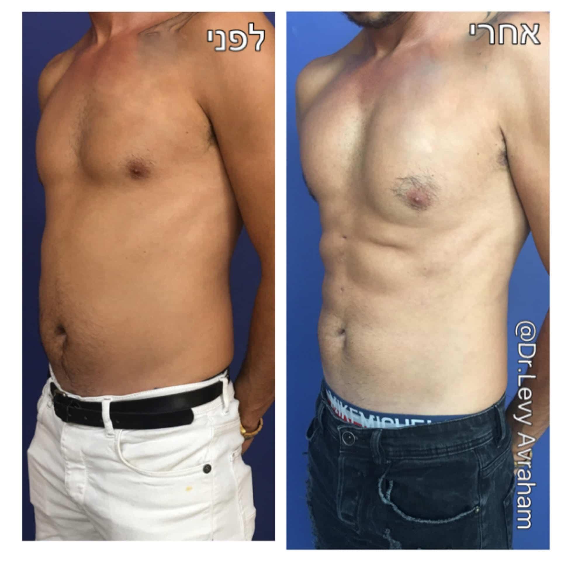 ריבועים בבטן לפני ואחרי