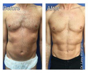 שאיבת שומן בלייזר תמונה לפני ואחרי