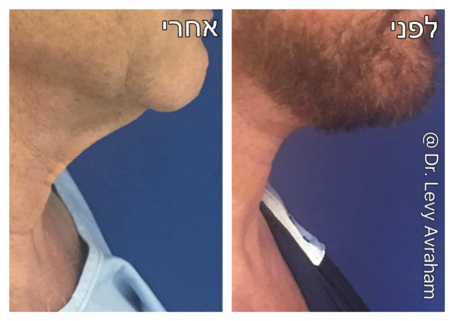 ניתוח מתיחת צוואר לגבר