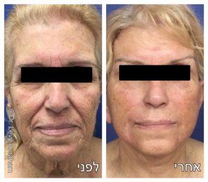 ניתוח מתיחת פנים וצוואר