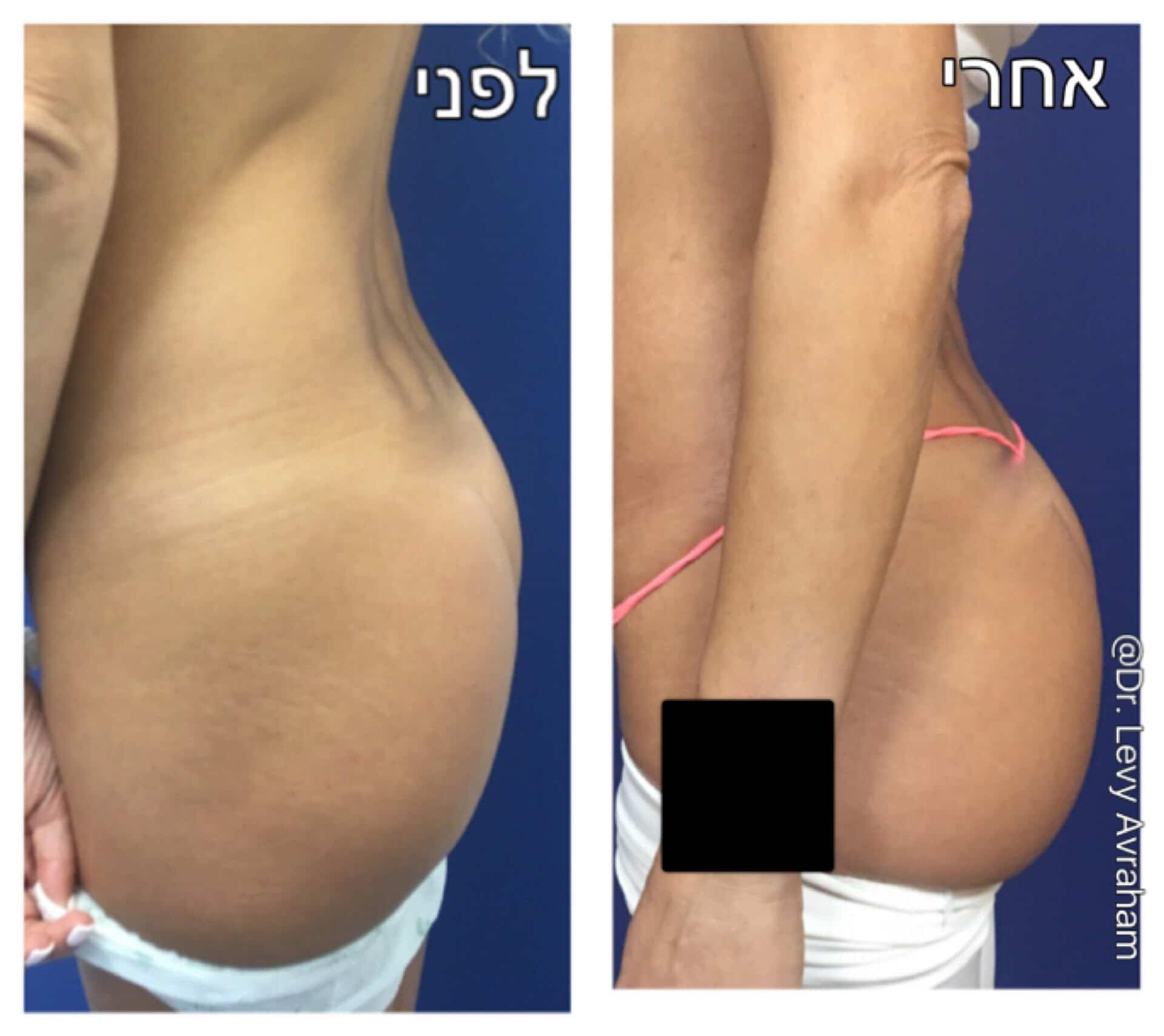 הגדלת ישבן באמצעות שומן