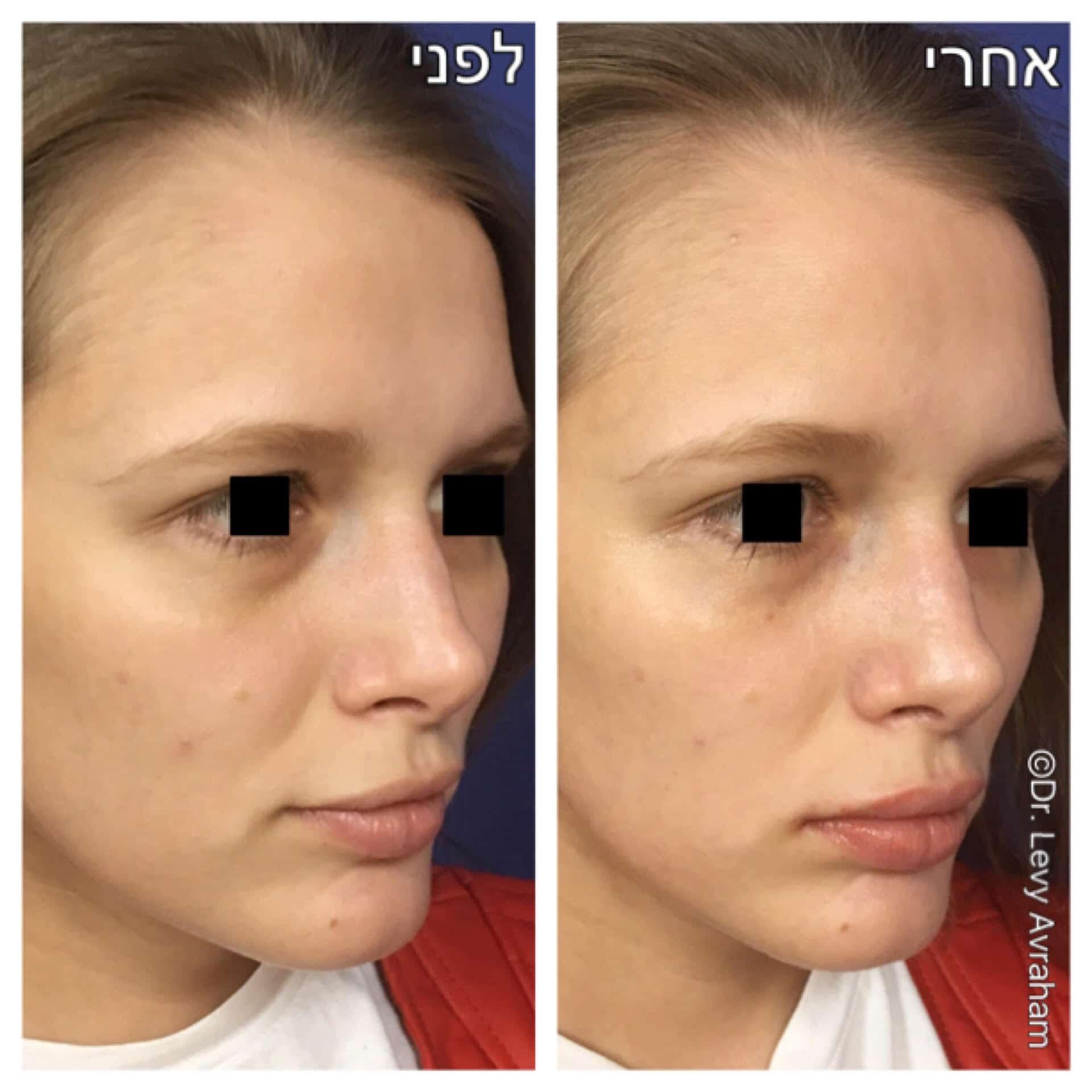 עיבוי שפתיים וטשטוש שקעים סביב העיניים