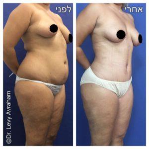 מתיחת בטן מלאה + שאיבת שומן מהמותנים והזרקה לישבן