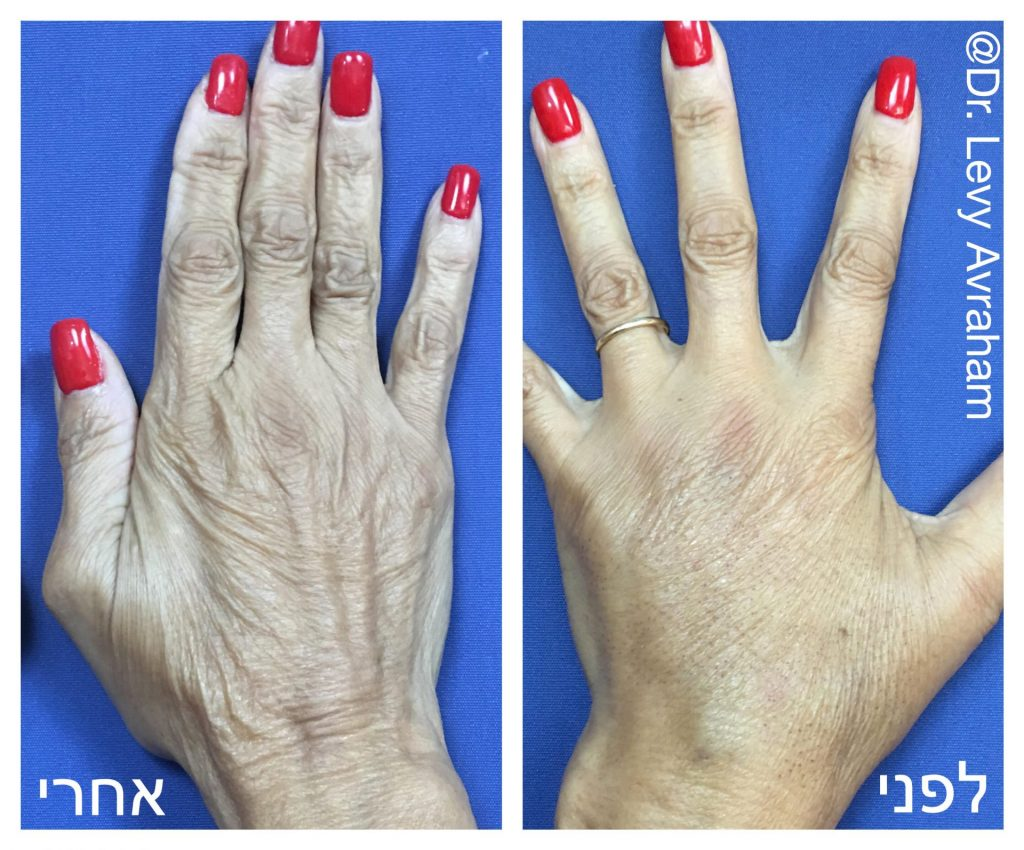 הצערת כף יד ב-Rf חיצוני והזרקת שומן