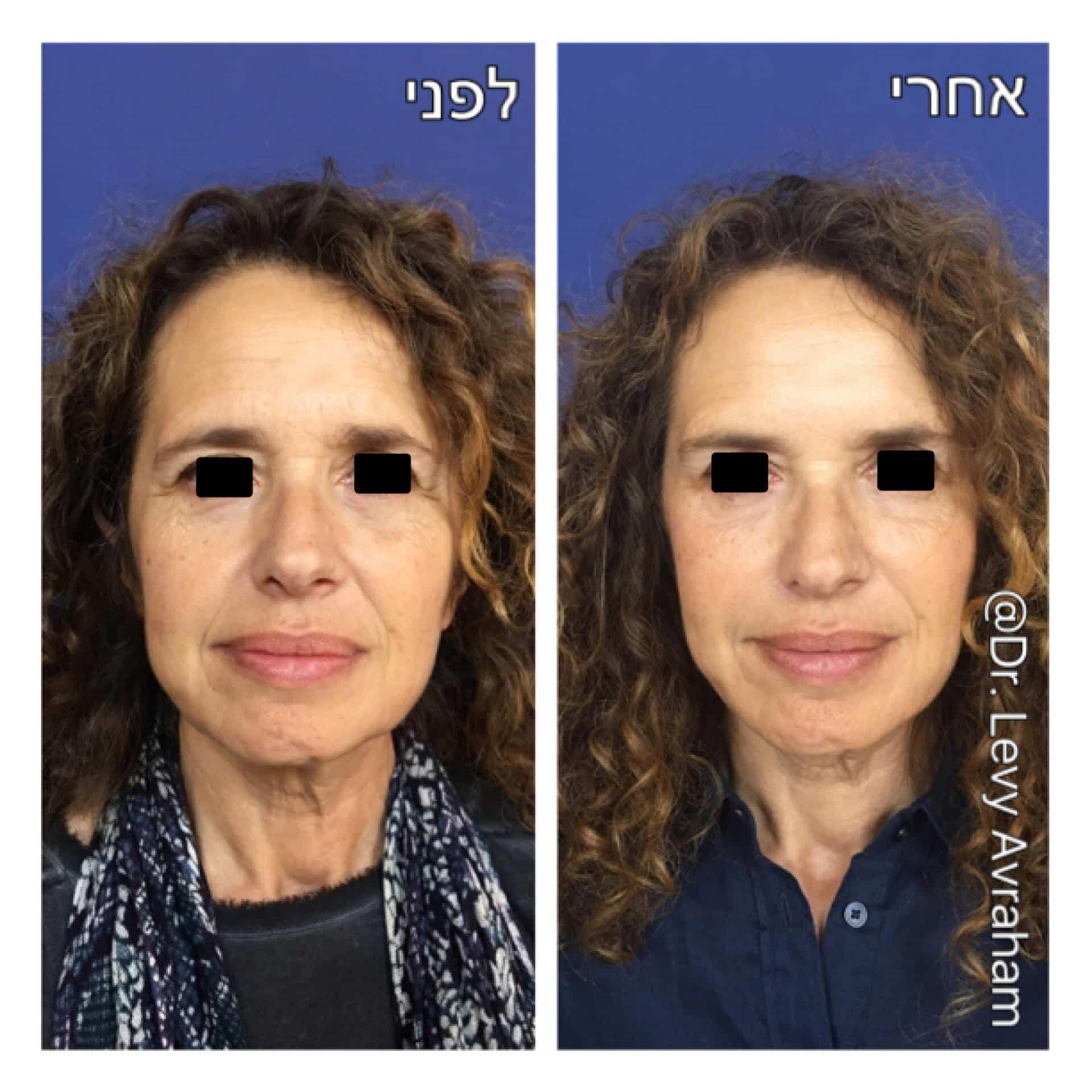 הזרקת חומצה היאלורונית תמונה לפני ואחרי