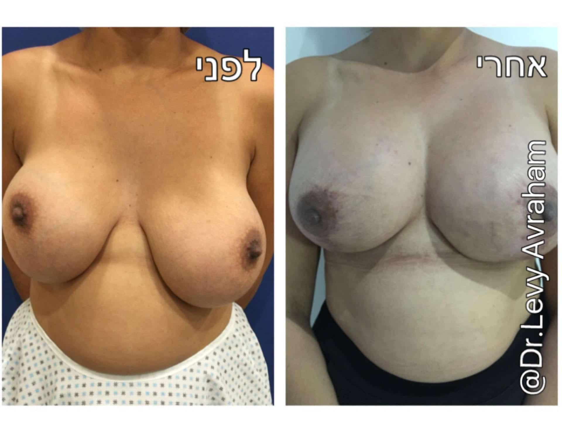 תיקון ניתוח פלסטי הגדלת חזה