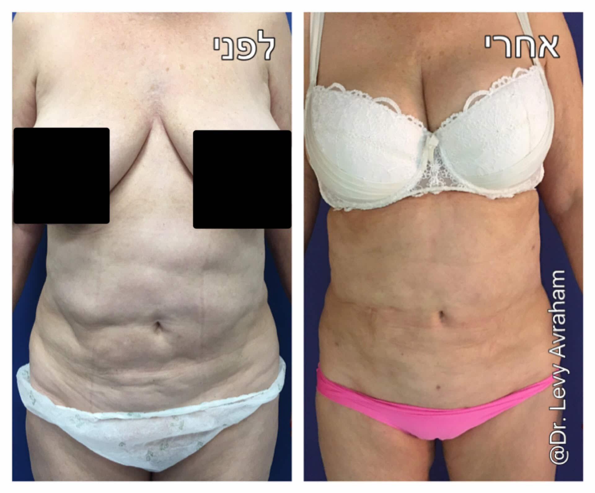 תיקון ניתוח שאיבת שומן בבטן