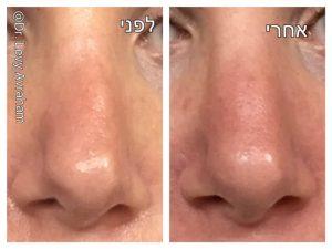 תיקון ניתוח פלסטי באף