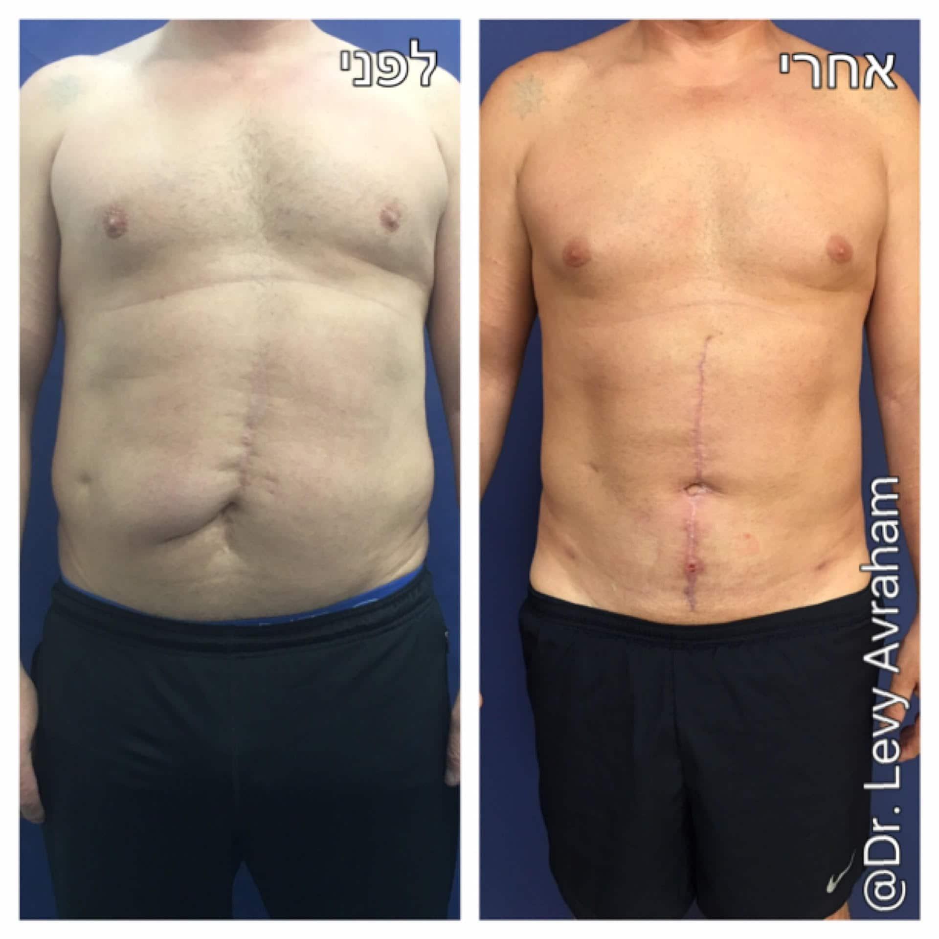 תיקון ניתוח פלסטי בבטן