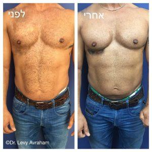 הגדלת שריר החזה לגבר בחומצה היאלורונית ושומן