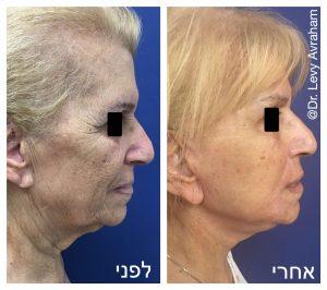 הסרת עודפי עור בפנים ובצוואר