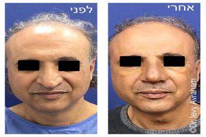 טיפולים אסתטיים לגבר - ניתוחים פלסטיים לגברים