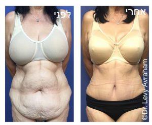 מתיחת בטן מלאה ושאיבת שומן