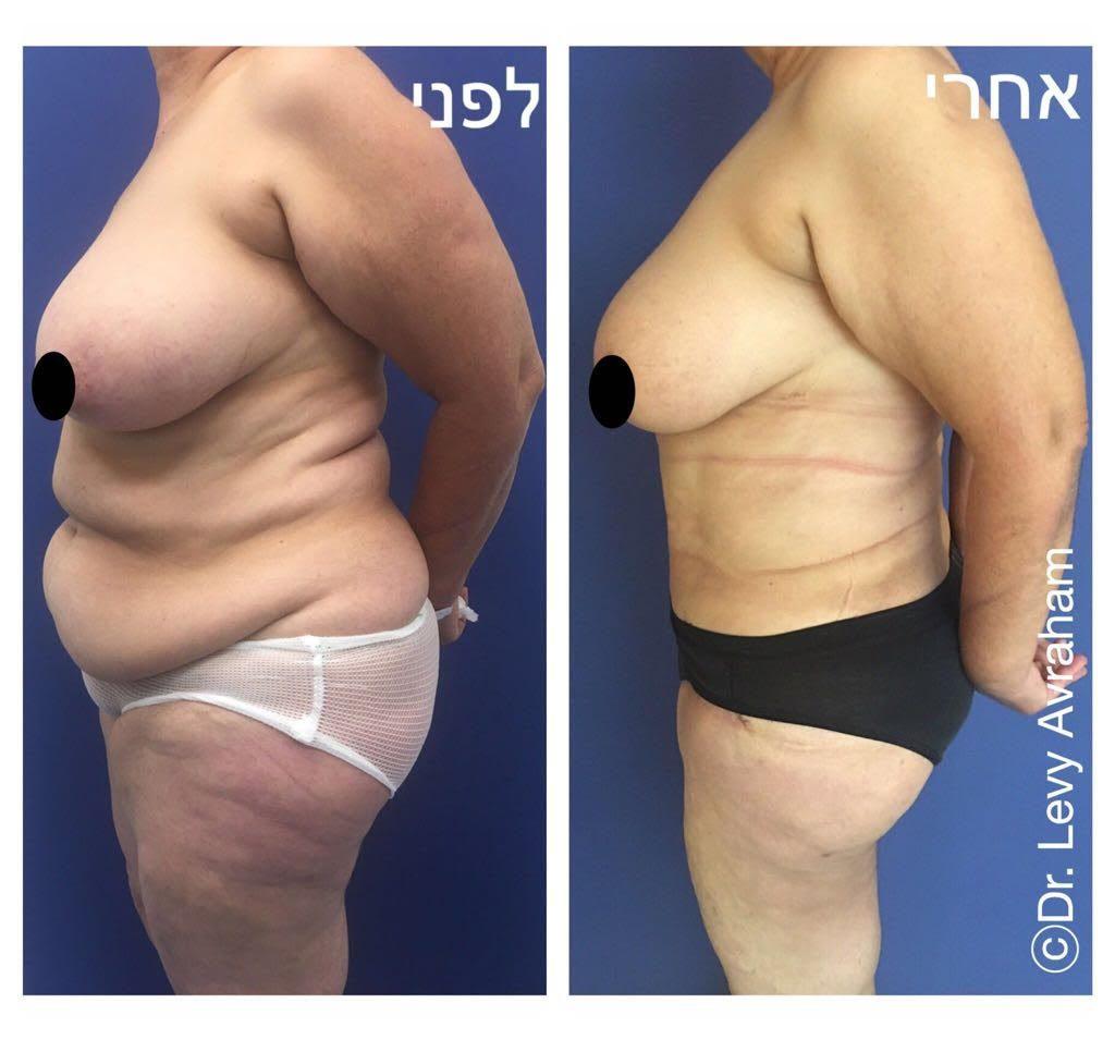 מתיחת בטן ושאיבת שומן ללא הידוק שריר