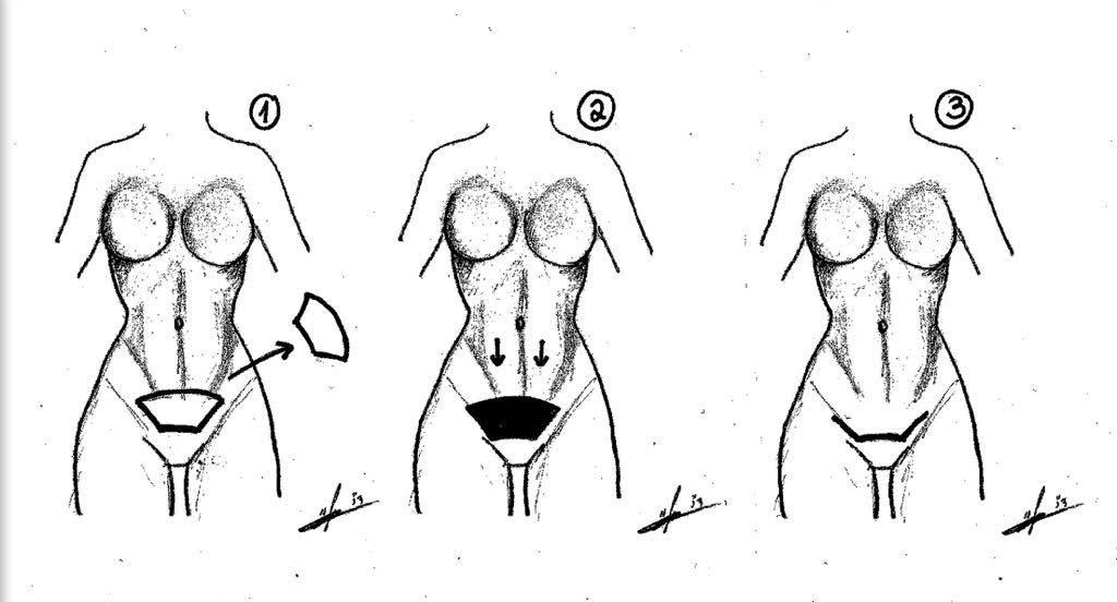 מיני מתיחת בטן איור