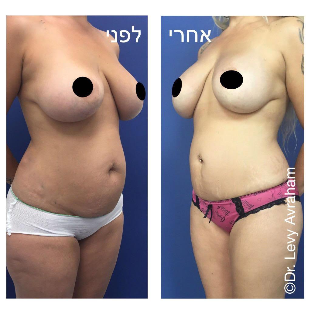 מיני מתיחת בטן ושאיבת שומן תמונה