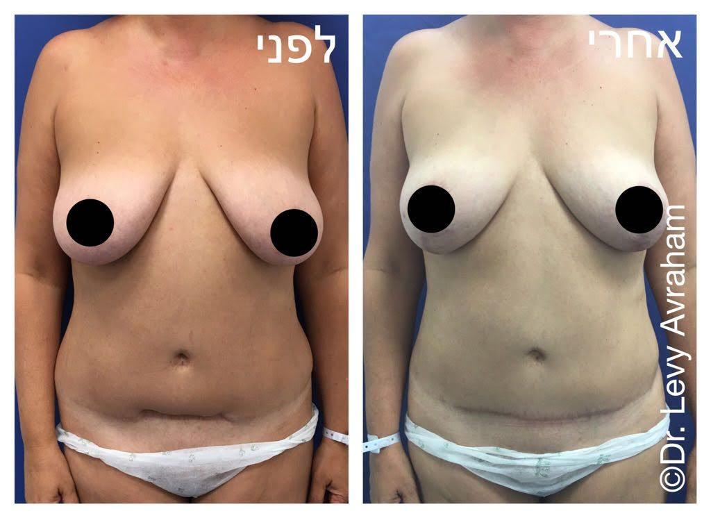 מתיחת בטן עם תיקון צלקת לאחר ניתוח קיסרי