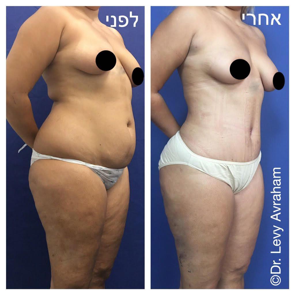 ניתוח מתיחת בטן עם הזרקת שומן לישבן