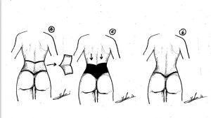מתיחת בטן איור 2