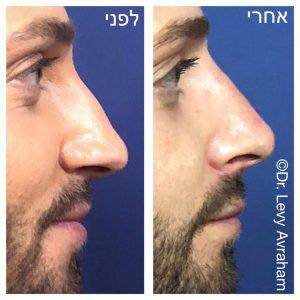 """פיסול אף ד""""ר לוי אברהם"""